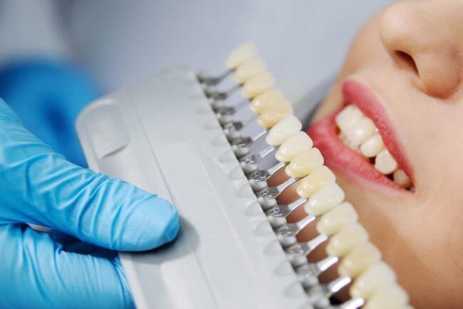 Procedūros negalima atlikti žmonėms alergiškiems peroksidui , nėščioms moterims, nepilnamečiams. Prieš balinimo procedūrą rekomenduojama išgydyti nesveikusdantis, atlikti profesionalią burnos higieną. Nerekomenduojama balinti dantis pacientams su stipriai nudilusiais dantimis, esant dideliam dantų jautrumui. Reikia atkreipti dėmesį kad balinimo procedūros metu keičiasi tik nuosavo danties spalva, o plombos ir vainikėliai nebąla.