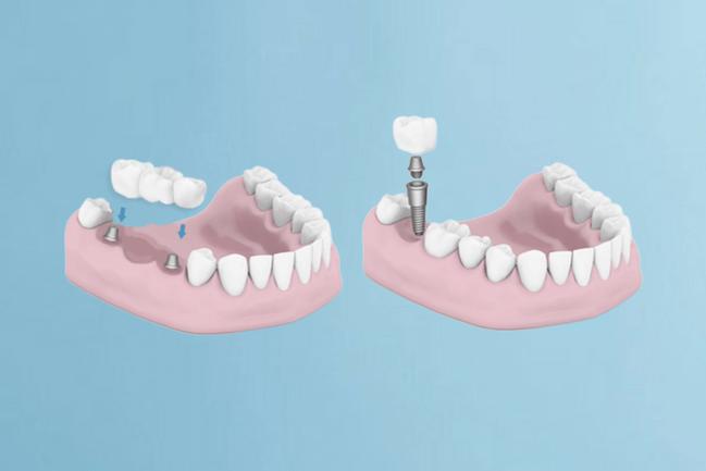 kaip-atrodo-dantu-implantas